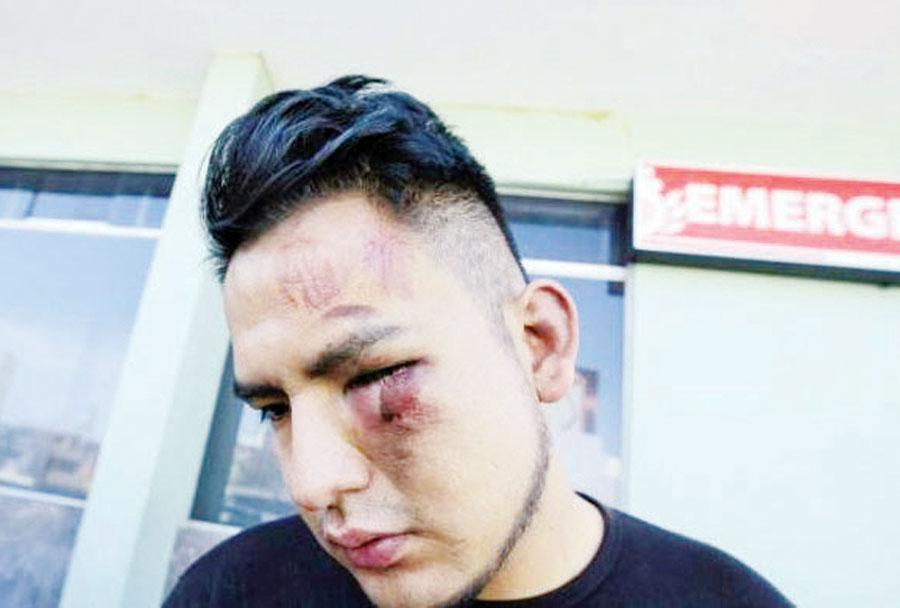Guillermo Ayerve Arena, denuncio ser agredido por jugadores del FBC Melgar