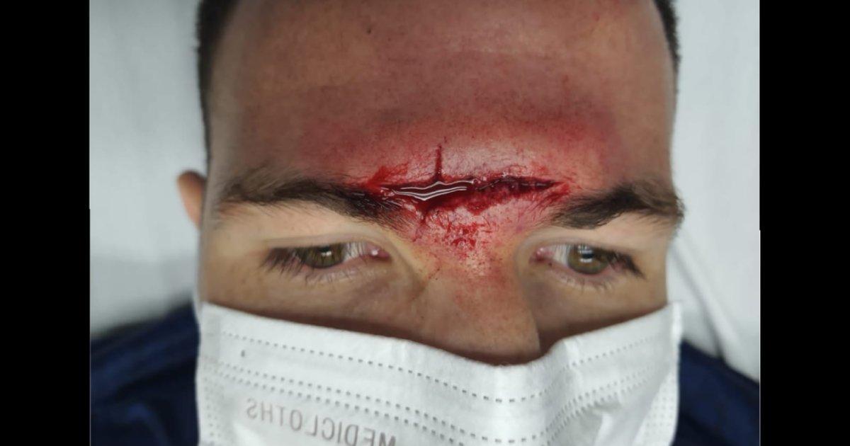 La terrible herida de Adrián Ugarriza que costaron 24 puntos